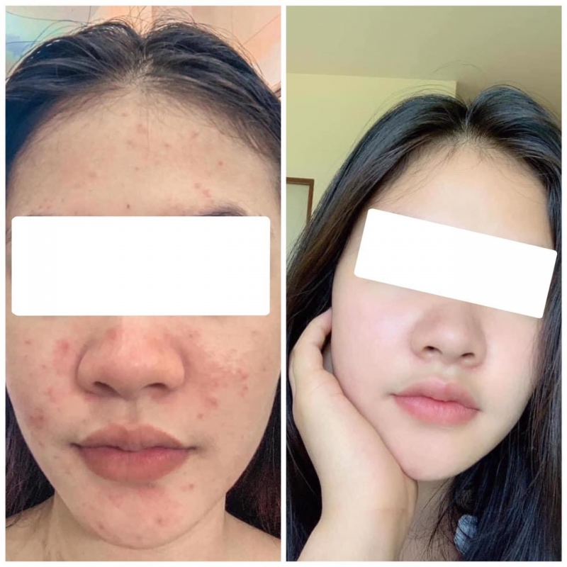 Etre Belle Skin Detox Cure Therapy Tripple Perfect Purifying Acne Ampoule