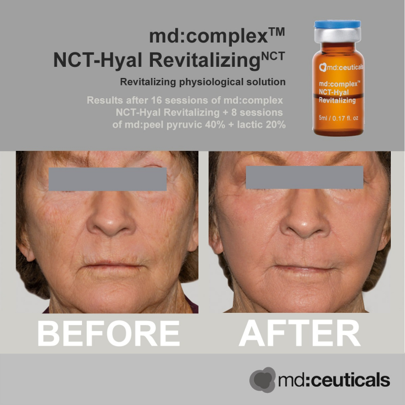 Md:ceuticals Md Complex NCT-Hyal Revitalizing