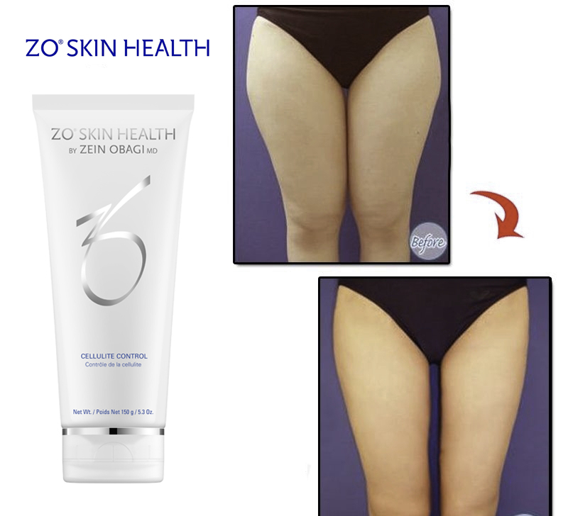 Zo Skin Health Cellulite Control