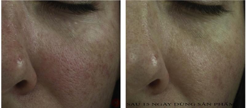 Etre Belle Skin Detox Cure Therapy Triple Effect Restore Damaged Skin Cell Serum