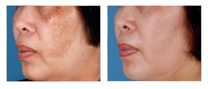 Zo Skin Health Retinol Skin Brightener 1%